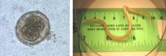 Figure 1. Œuf d'Ascaris (nématode) et ver femelle adulte