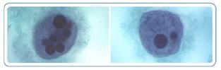 Figure 15. Trophozoïtes d'E. histolytica contenant des globules rouges ingérés