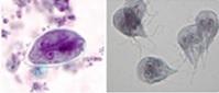 Figure 11. Kyste Giardia et trophozoïtes